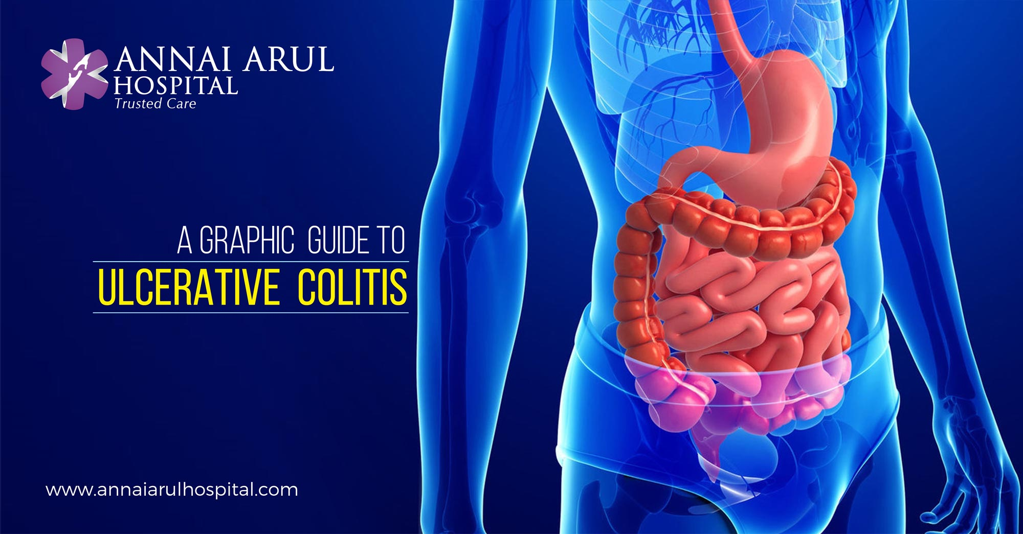 ulcerative colitis Ulcerative colitis (uc) symptoms range from mild to severe symptoms may vary over time and from person to person, depending on what part of the large intestine is inflamed and the severity of the inflammationimmune response to tissue injury that causes redness, swelling, and pain because symptoms.