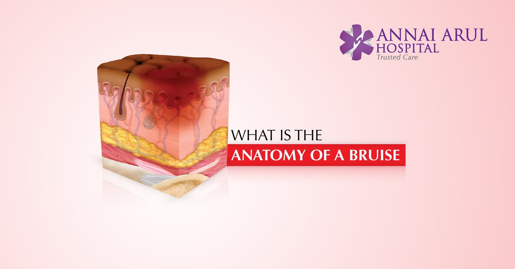 What Is The Anatomy Of A Bruise Multispeciality Hospitals In Chennai