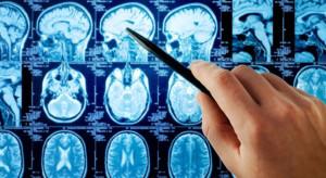 Neurologist in Tambaram